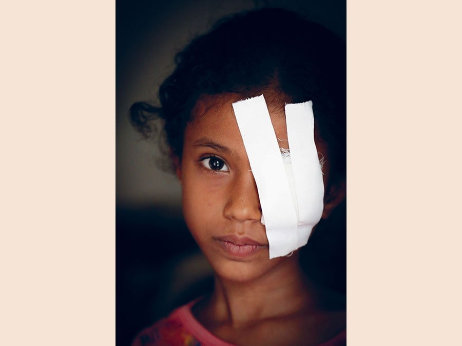 Razan, Yemen. Credit: Mohammed Awadh / Save the Children