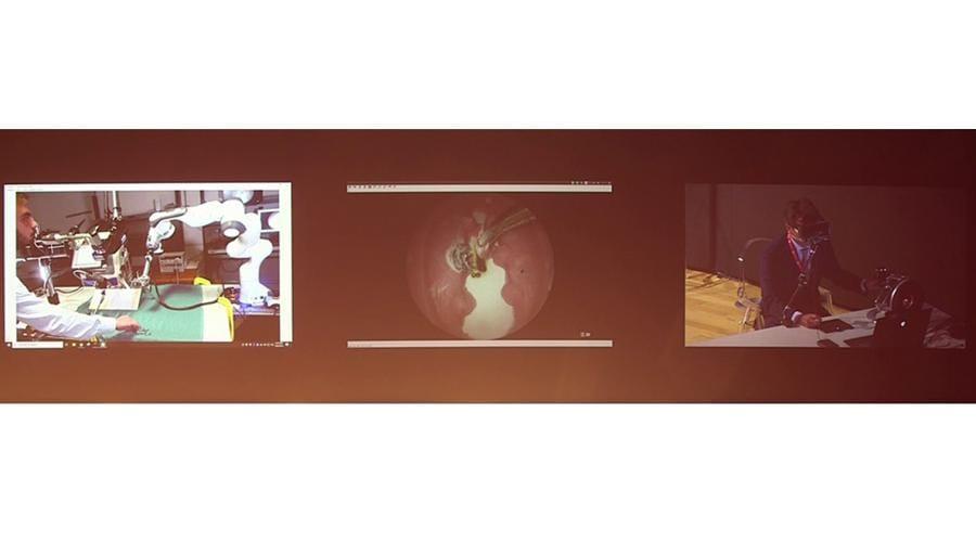 A destra il chirurgo controlla il braccio robotico, al centro l'immagine riprodotta nei visori a realtà aumentata e, a sinistra il braccio robotico che interviene sul paziente