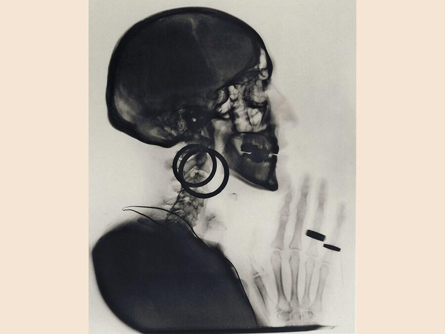 Meret Oppenheim,  Sketch for X-ray of Meret Oppenheim's Skull, 1978, cm 34,5 x 27,5, courtesy Levy Galerie, Hamburg, © Meret Oppenheim by Siae 2019