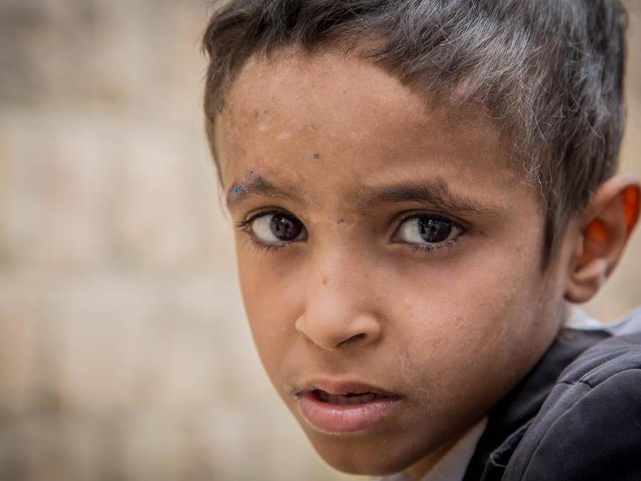Ismail, Yemen. Credit: Mohammed Awadh / Save the Children