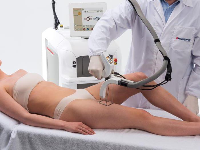 Epilatori, laser e creme: ecco come avere una pelle super liscia